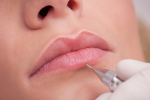 Lippenpigmentierung